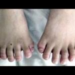 10 Rarest Illnesses